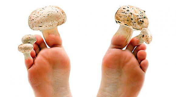 Миниатюра к статье Как избавиться от грибка без лекарств